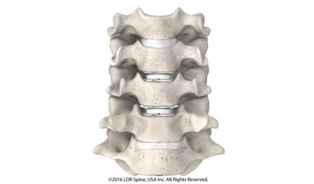 Minimally Invasive Spine Surgery San Diego Vik Udani Md